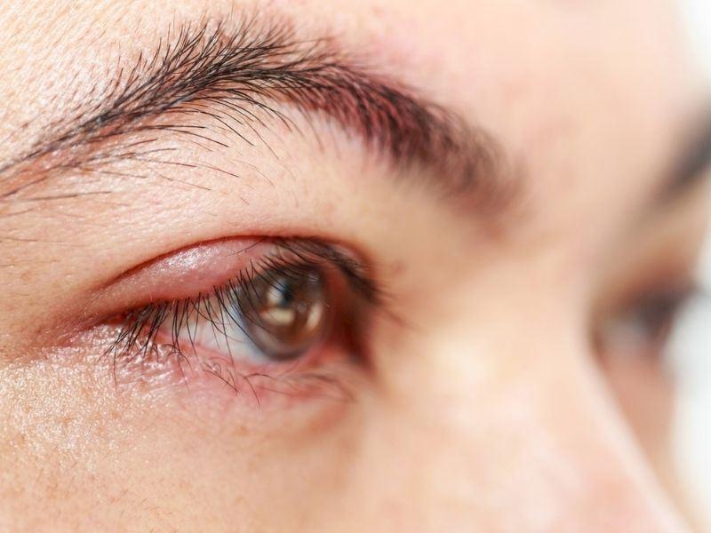 Göz Kapakları Neden Şişer?